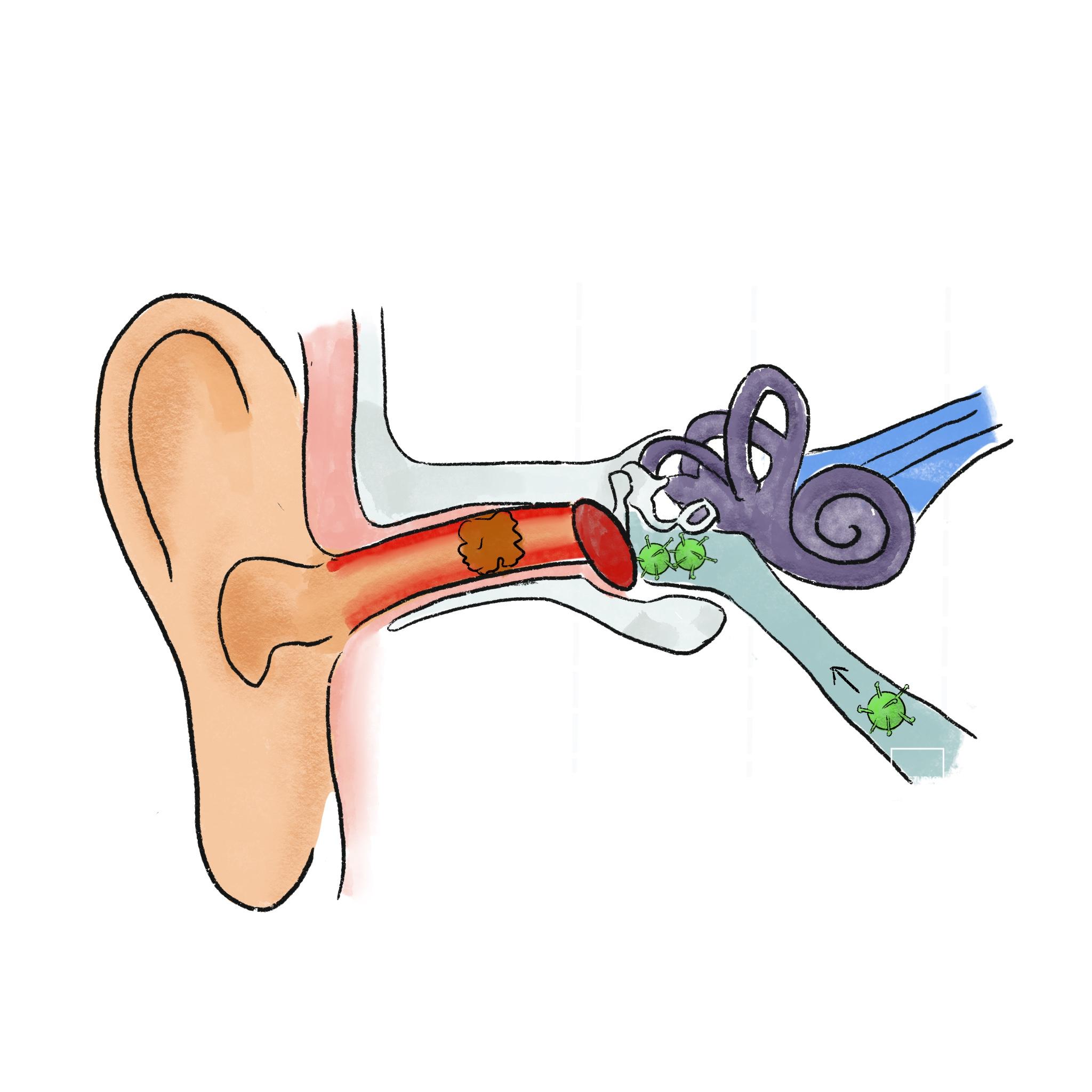 Studio Nons | Oorpijn oorontsteking